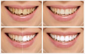 El Paso Dentist - Cosmetic Dentistry