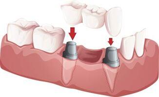 El Paso Dentist - Crowns & Bridges