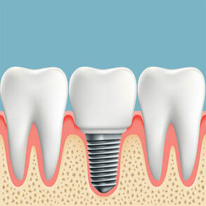 El Paso Dentist - Dental Implants