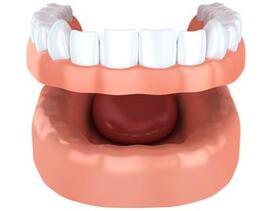El Paso Dentist - Dentures
