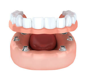 El Paso Dentist - Dentures & Implants