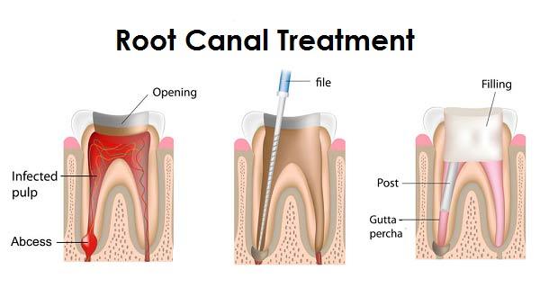 El Paso Dentist - Teeth Filling