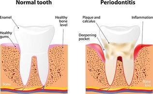 El Paso Dentist - Periodontal Disease