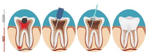 El Paso Dentist - Endontics