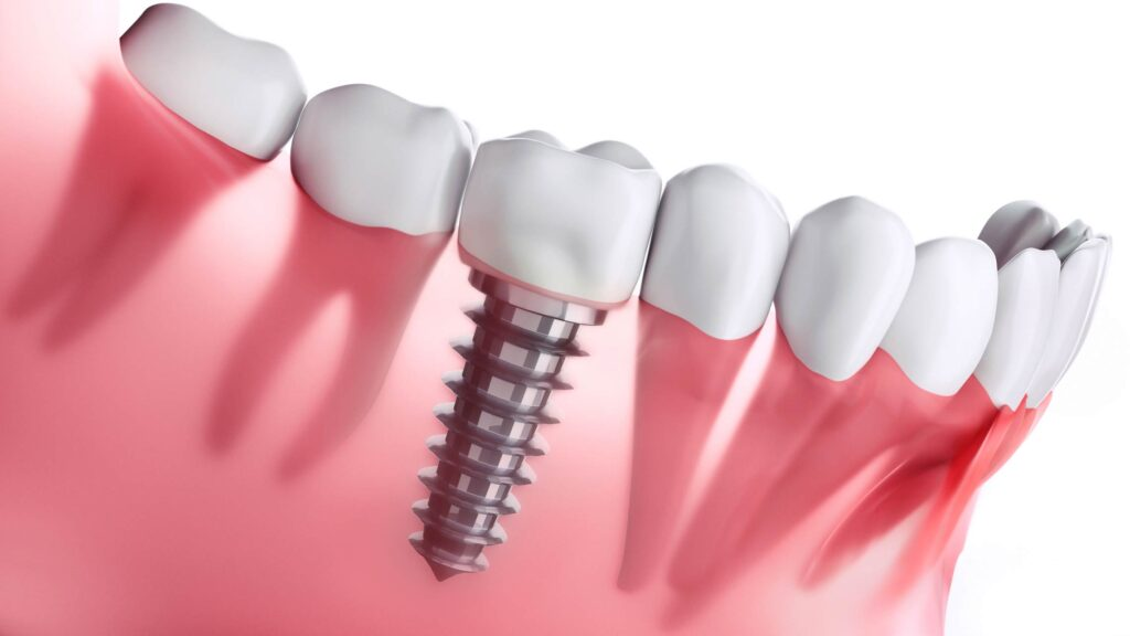 How to take care of Dental Implants in El Paso, TX.