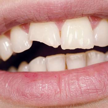 Chipped or cracked tooth in El Paso, TX - Cosmetic Dentistry