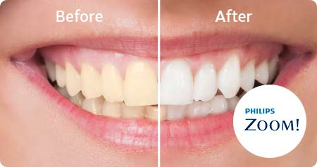 During your consultation, our doctor will determine whether you are a good candidate for Zoom! teeth whitening treatment.