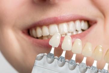 Dental Bonding in El Paso, TX